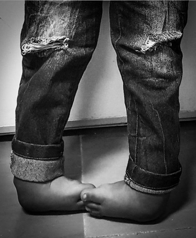 Jairo Lopes conta a história do João, que nasceu com os pés tortos